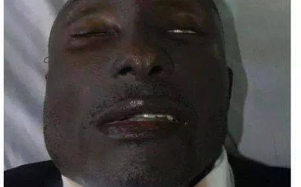 Photos de l'autopsie d'Ebossé : un projectile ne peut avoir fait ce massacre